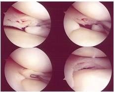 degenerative-meniscus-tear