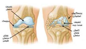 knee-joint-replacement-1