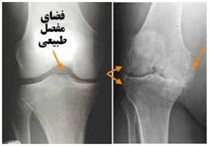 knee-joint-replacement-4