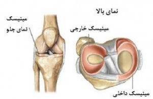 meniscus-graft