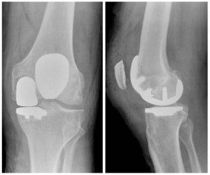 partial-joint-replacement-xray