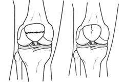 patella-fracture-2