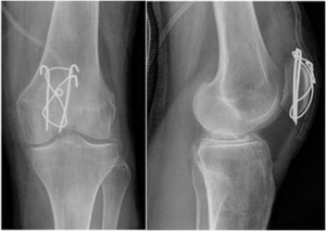 patella-fracture-3