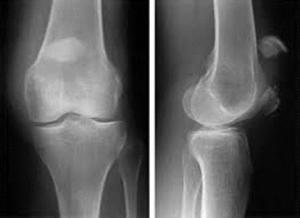 patella-fracture-xray