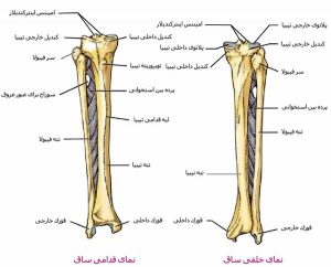 plato-tibial-fracture