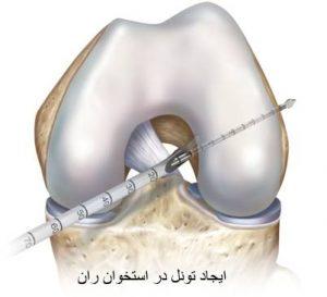 anterior-cruciate-ligament-4