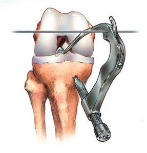 anterior-cruciate-ligament-5