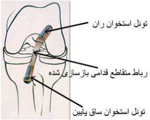 anterior-cruciate-ligament-8