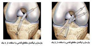 anterior-cruciate-ligament-9