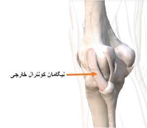 ligament-injury-1