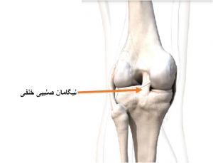 ligament-injury-3