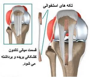 patellar-ligament