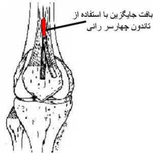 quadriceps-ligament